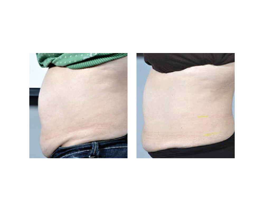 fat loss fat reduction radio frequency body contouring in Sechelt B.C