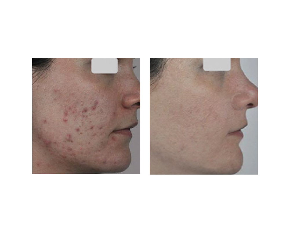 Acne before and after laser treatment