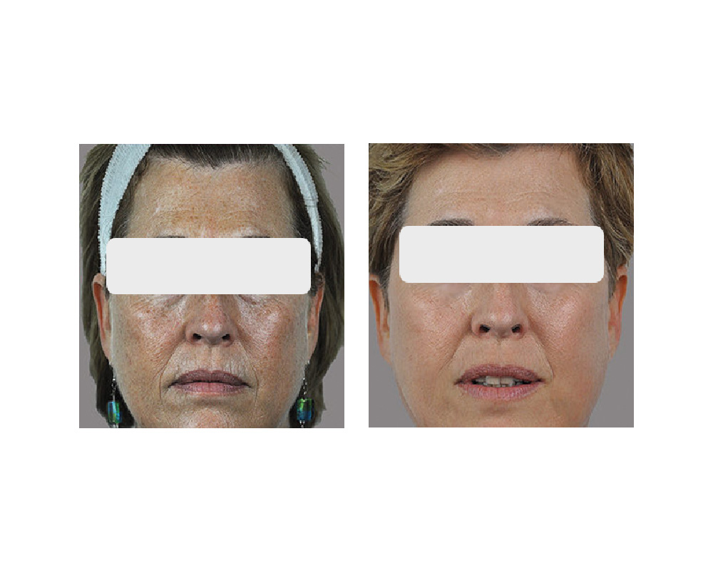 fractional skin rejuvination before and after